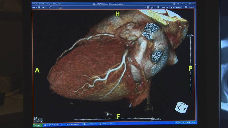 In general, the cases of myocarditis and pericarditis appear to be rare and mild and usually...